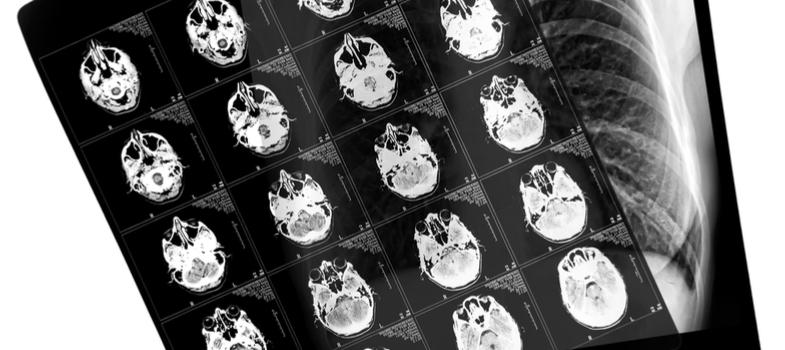 O curso técnico em radiologia é extremamente focado na questão da segurança do profissional e do paciente