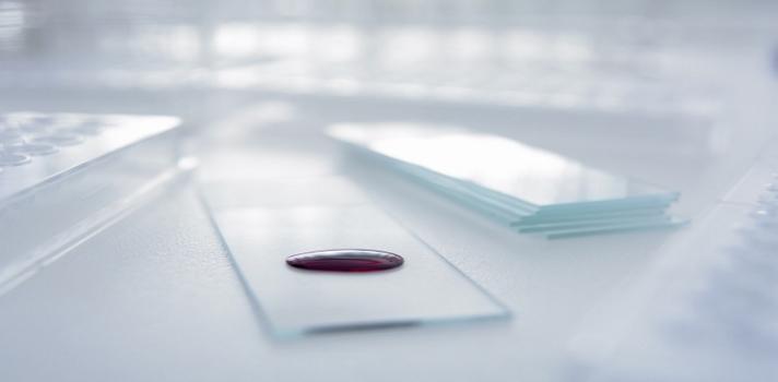 Prevenir el Alzheimer puede ser tan fácil como hacer un análisis de sangre.