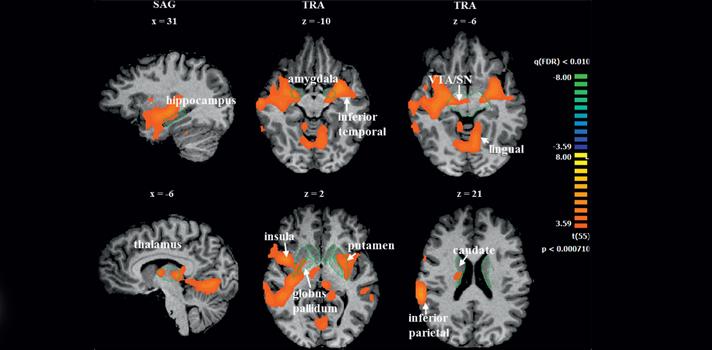 Estudo de imagem cerebral de adeptos revela que paixão pelo futebol corresponde a forma de amor tribal