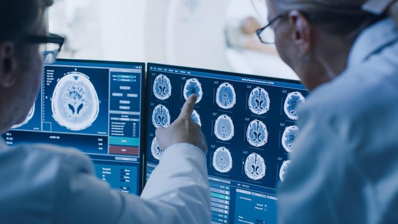 Todo lo que necesitas saber sobre la Neuropsicología