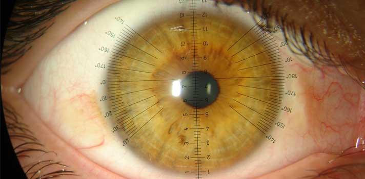 UMinho estuda lentes de contacto inovadoras que travam a miopia das crianças