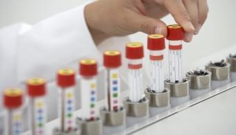 Científico de la Universidad de Chile es premiado por hallazgos sobre el cáncer
