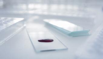 Hallan una estrategia no tóxica para tratar la leucemia